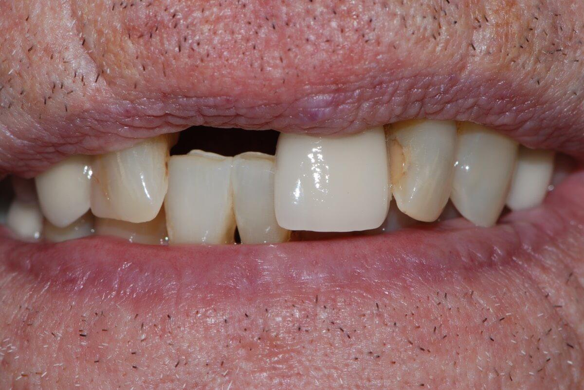 Dental implant 3-1
