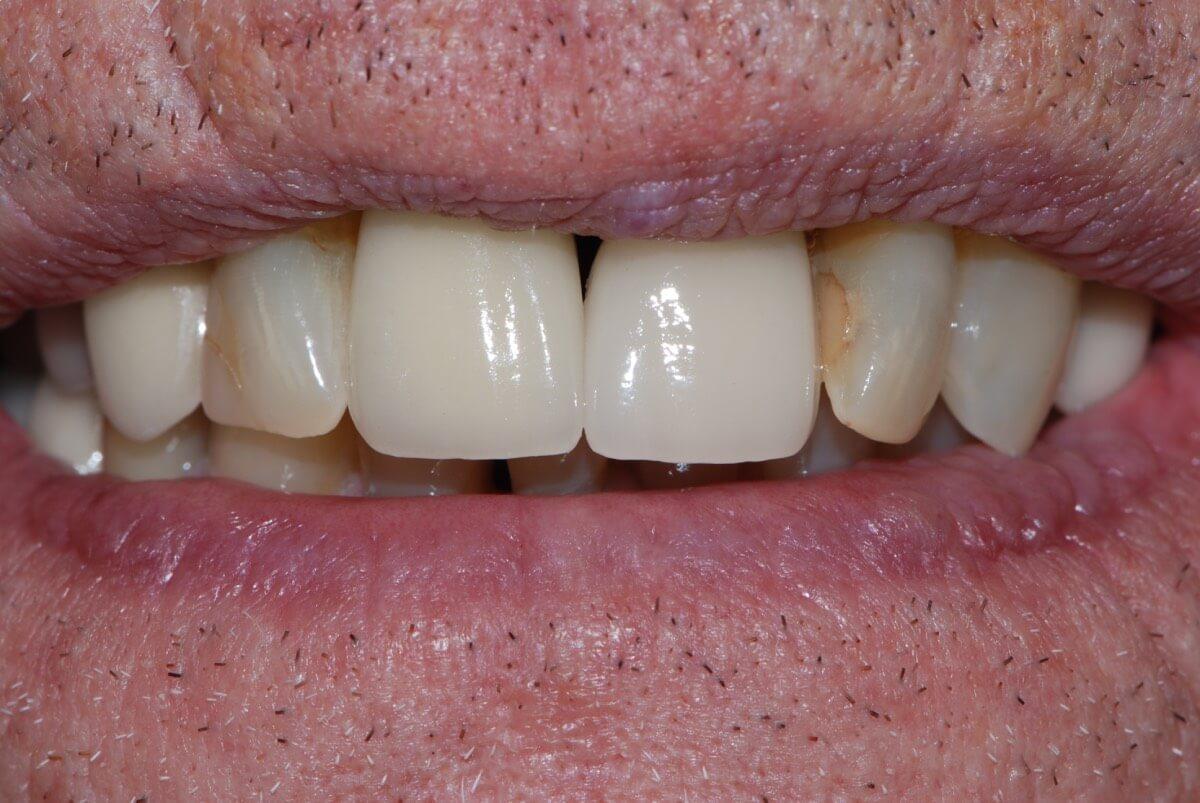 Dental implant 3-2