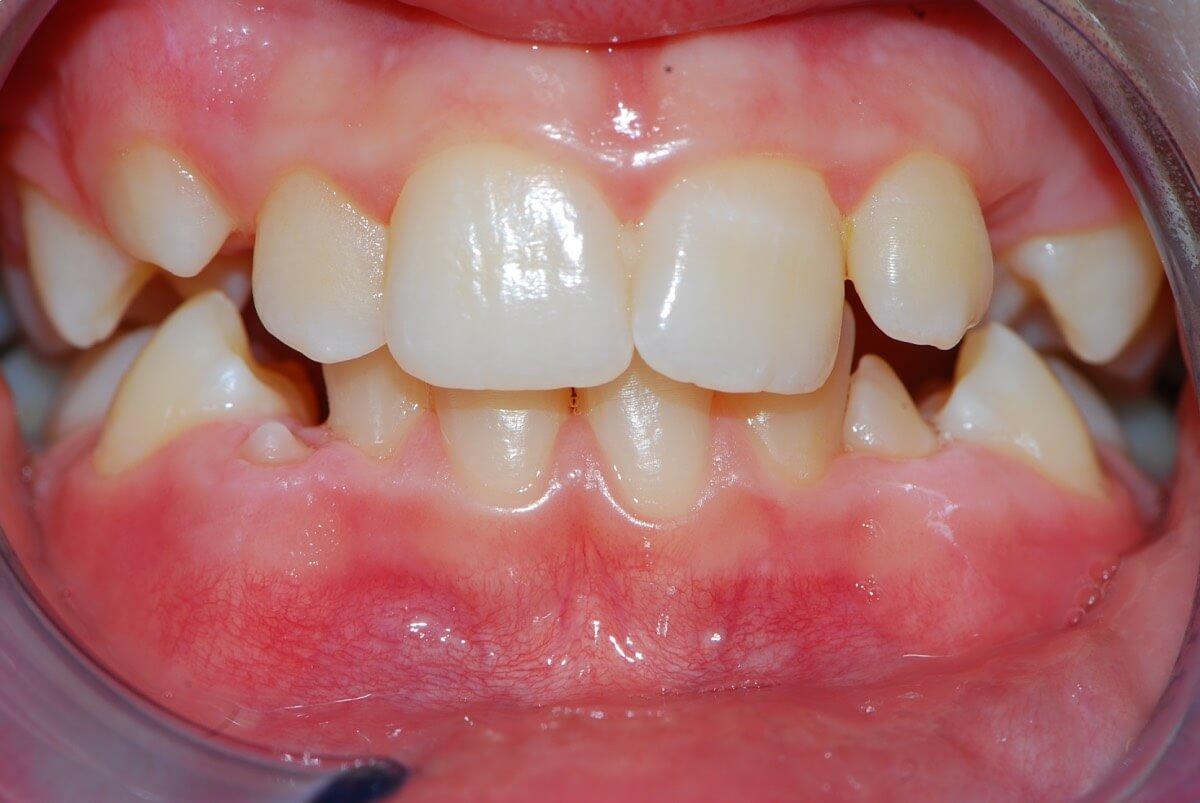 Orthodontics 2-1