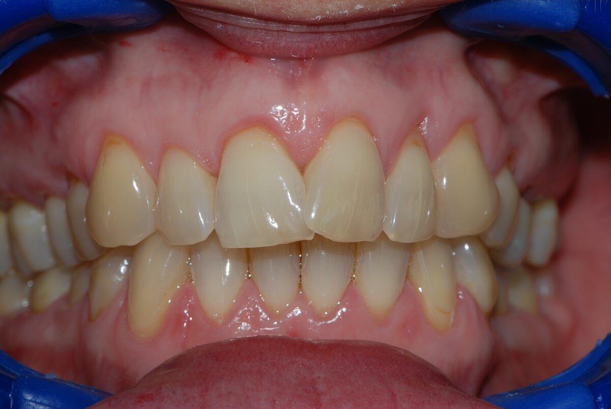 Teeth Whitening 1-1
