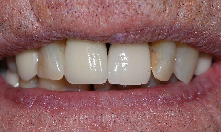 Dental Implants 2-2 after