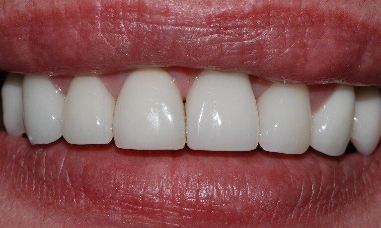 Dental Implants 5-2 after