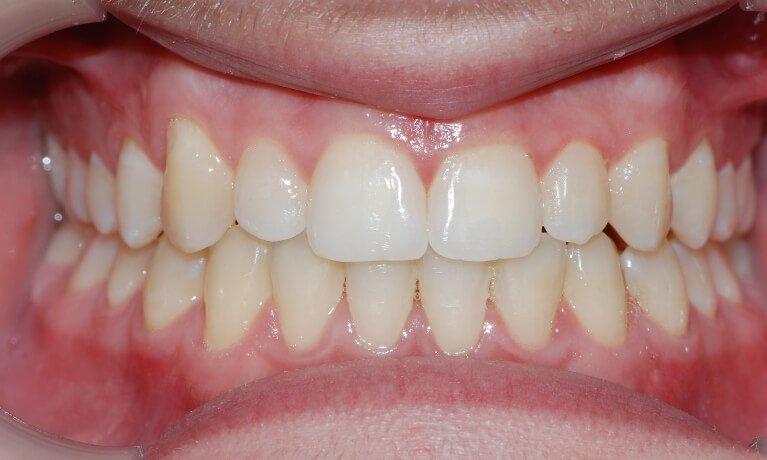 Orthodontics after