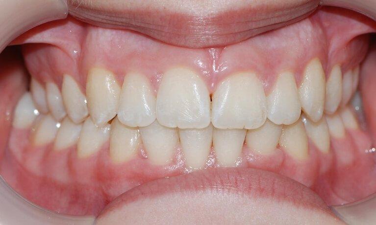 Orthodontics 3-4 after