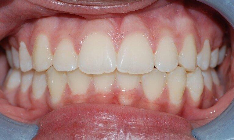 Orthodontics 1-4 after