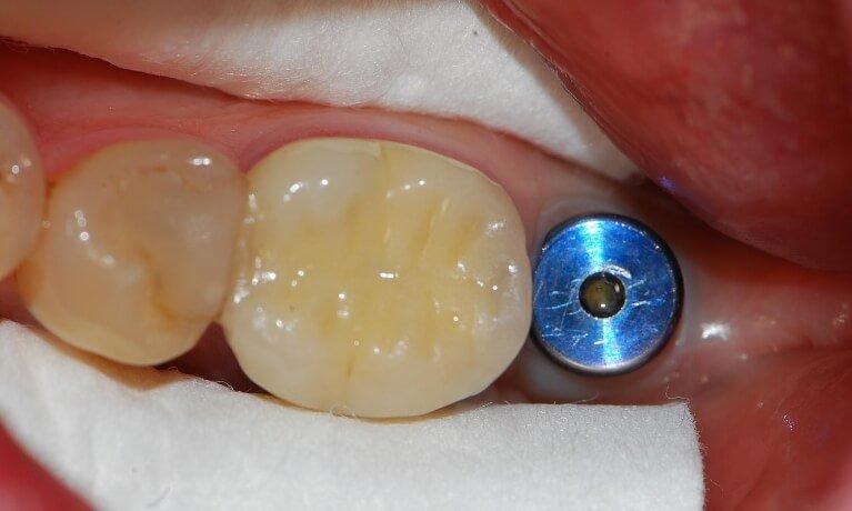 Dental Implants 4-1 before