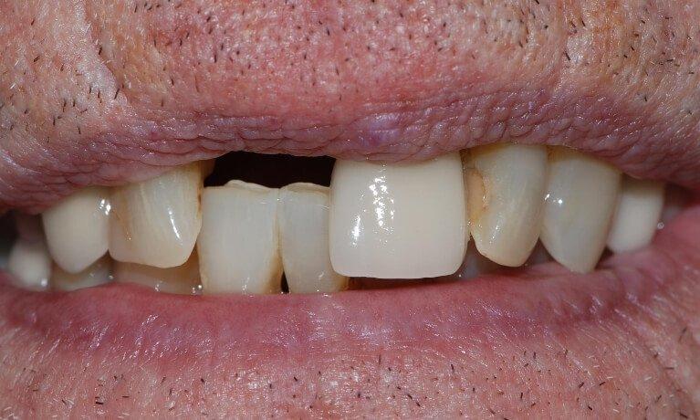 Dental Implants 2-1 before