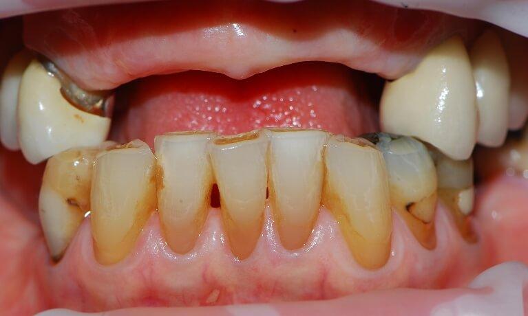 Dental Implants 3-1 before