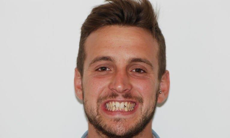 Orthodontics 2-1 before