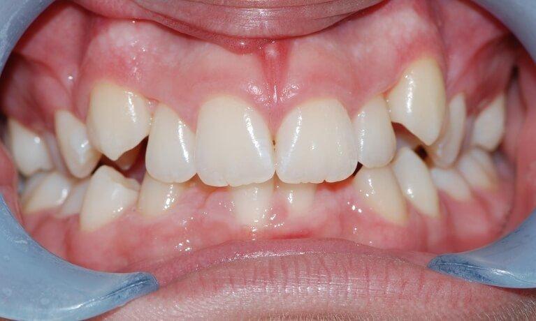 Orthodontics 3-3 before