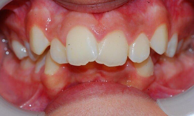 Orthodontics 1-3 before