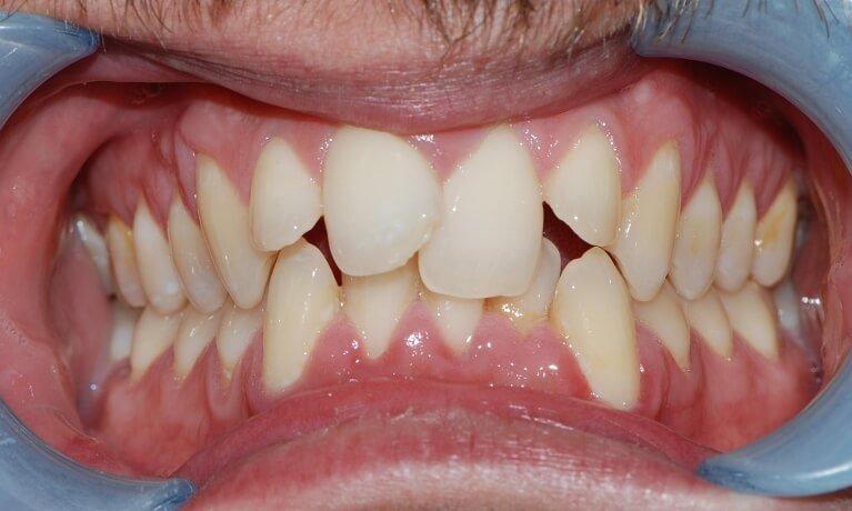 Orthodontics 2-3 before